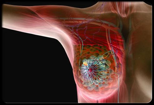 A Tool for Early Breast Cancer Screening