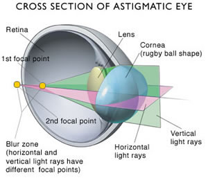 An Introduction to Astigmatism