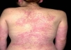 Allergic Rashes