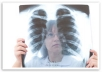 The Malignant Mesothelioma Life Expectancy