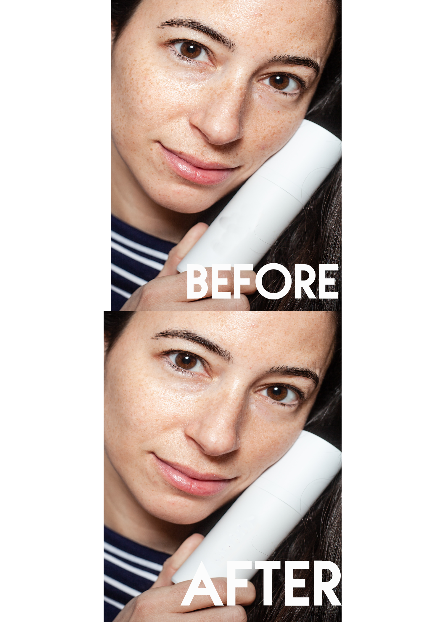 Skin Spots and Defects Gone Forever