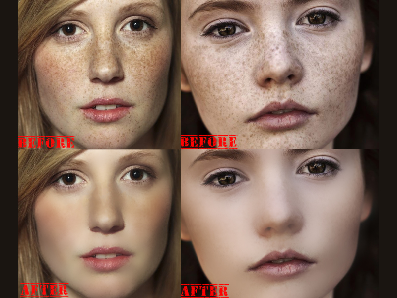 I will remove spots on your face within 2 hr