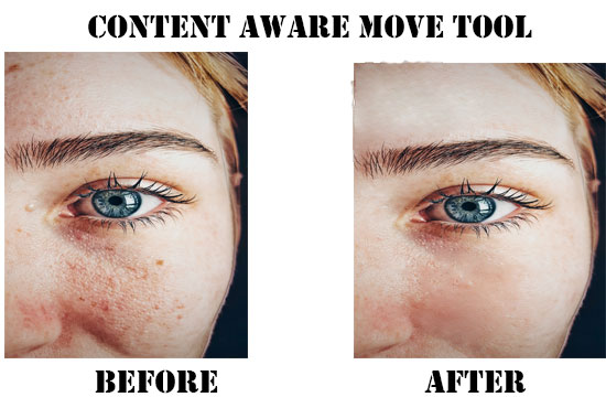 I will remove pimple dark spot and heal face and your background