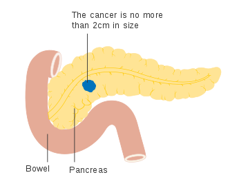 Pancreatic Cancer Symptoms And Risk Factors